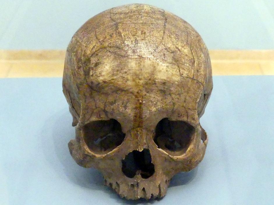 Franz Josef Gall: Gallscher Schädel aus dem Besitz des Wiener Arztes Franz Josef Gall, um 1790