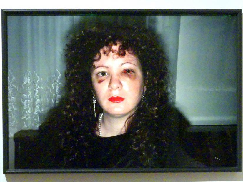 Nan Goldin: Nan einen Monat, nachdem sie geschlagen wurde, 1984